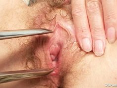 Hairy pussy lady Tamara embarrassing doctor exam
